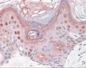 Immunohistochemistry staining of BMP2K in skin tissue using BMP2K Antibody.