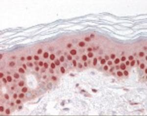 Immunohistochemistry staining of GDF9 in skin tissue using GDF9 Antibody.