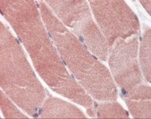 Immunohistochemistry staining of T-box 4 in skeletal muscle (formalin-fixed paraffin embedded) tissue using T-box 4 Antibody.