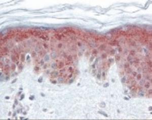 Immunohistochemistry staining of DNMT1 in skin tissue using DNMT1 Monoclonal Antibody.