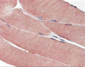 Immunohistochemistry of human skeletal muscle tissue stained using IGF1R Monoclonal Antibody.