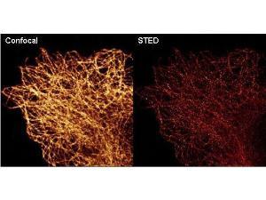 Anti-alpha-Tubulin Monoclonal Antibody - Immunofluorescence Microscopy