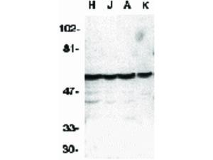 Western Blot of Caspase-10 Antibody