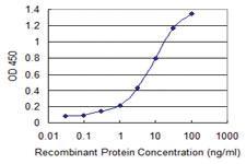 Anti-CBX1 Mouse Monoclonal Antibody [clone: 4000000000000]