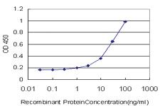 Anti-MSLN Mouse Monoclonal Antibody [clone: 1A10]