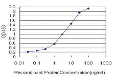 Anti-MLLT11 Mouse Monoclonal Antibody [clone: 2A9-1B7]