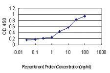 Anti-STIP1 Mouse Monoclonal Antibody [clone: 4B6]