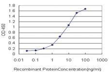 Anti-STIP1 Mouse Monoclonal Antibody [clone: 1000]