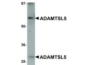 Western Blot of ADAMTSL5 Antibody