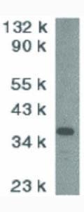 Western Blot of CAD Antibody