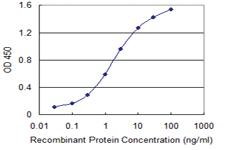 Anti-SF3B4 Mouse Monoclonal Antibody [clone: 1B8]