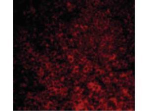 Western Blot of CARMA1 Antibody