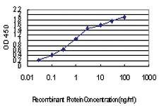 Anti-IRX5 Mouse Monoclonal Antibody [clone: 6B5]