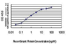 Anti-IRX5 Mouse Monoclonal Antibody [clone: 3C11]