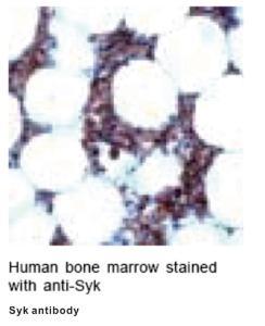 Anti-SYK Rabbit Polyclonal Antibody