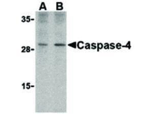 Immunofluorescence of Caspase-4 Antibody