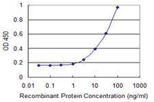 Anti-CLP1 Mouse Monoclonal Antibody [clone: 8D5]