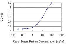 Anti-STUB1 Mouse Monoclonal Antibody [clone: 2000000000000]