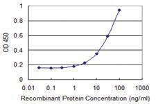 Anti-RAB32 Mouse Monoclonal Antibody [clone: 1C7]