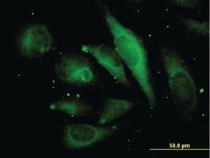 Anti-MAPRE2 Mouse Monoclonal Antibody [clone: 4D7]