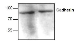 Western blots analysis ofCadherin expression withJurkat cell lysates.