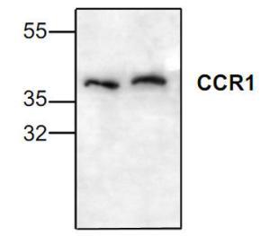 Western blot analsysisof CCR1 in Jurkat celllysate.