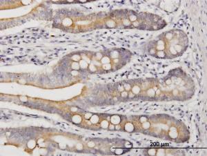 Anti-LIAS Mouse Monoclonal Antibody [clone: 1C7]