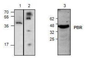 Anti-PBR Rabbit Polyclonal Antibody