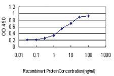 Anti-PAPD7 Mouse Monoclonal Antibody [clone: 2F8]