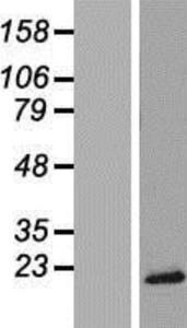 TRAPPC2 Lysate (Adult Normal), Novus Biologicals (NBP2-08785)