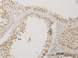 Anti-NUDT21 Mouse Monoclonal Antibody [clone: 3F8]