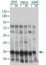 Anti-HMG20B Mouse Monoclonal Antibody [clone: 1F6]