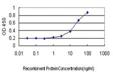 Anti-SOX30 Mouse Monoclonal Antibody [clone: 1A11]