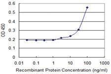 Anti-UBE2C Mouse Monoclonal Antibody [clone: 1D8]