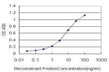 Anti-SGK2 Mouse Monoclonal Antibody [clone: 4B12]