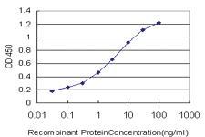 Anti-SGK2 Mouse Monoclonal Antibody [clone: 4G4]