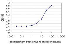 Anti-STMN2 Mouse Monoclonal Antibody [clone: 1C6]