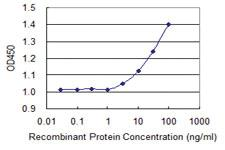 Anti-STMN2 Mouse Monoclonal Antibody [clone: 1A7]