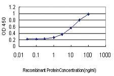 Anti-NDRG1 Mouse Monoclonal Antibody [clone: 2D7]