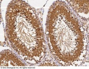 Anti-UCHL3 Rabbit Monoclonal Antibody [clone: 007]
