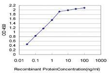 Anti-ESM1 Mouse Monoclonal Antibody [clone: 6D4]