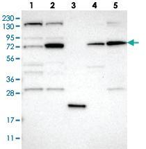 Anti-DNAJC14 Rabbit Polyclonal Antibody