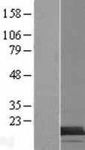TMEM218 Lysate (Adult Normal), Novus Biologicals (NBP2-08405)