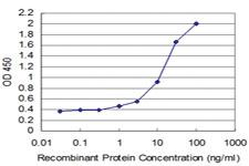 Anti-TESK2 Mouse Monoclonal Antibody [clone: 6C7]