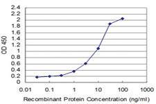 Anti-TESK2 Mouse Monoclonal Antibody [clone: 5G1]