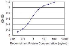 Anti-PGRMC2 Mouse Monoclonal Antibody [clone: 2A3]