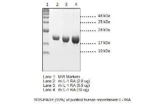 SDS-PAGE (15%) of purified human recombinant IL-1RA