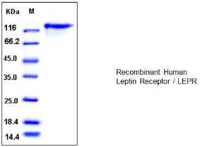 Leptin Receptor, human recombinant, BioVision