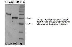 Fig 1- SDS-PAGE (15%) of purified human recombinant SOD protein.<br />Lane 1: 10  g Tagged protein<br />Lane 2: 10  g untagged protein<br />Lane 3: Marker