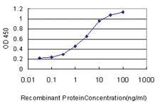 Anti-FGFR1OP Mouse Monoclonal Antibody [clone: 2B1]